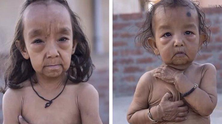Případ Benjamina Buttona: Sourozenci trpí genetickou poruchou, narodili se staří