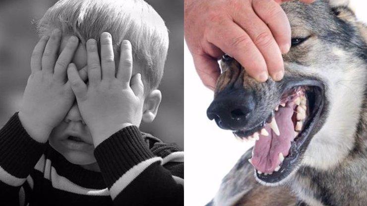 Brutální útok psa na chlapečka (4) není ojedinělý: Další případy, kdy zvíře bezhlavě zaútočilo