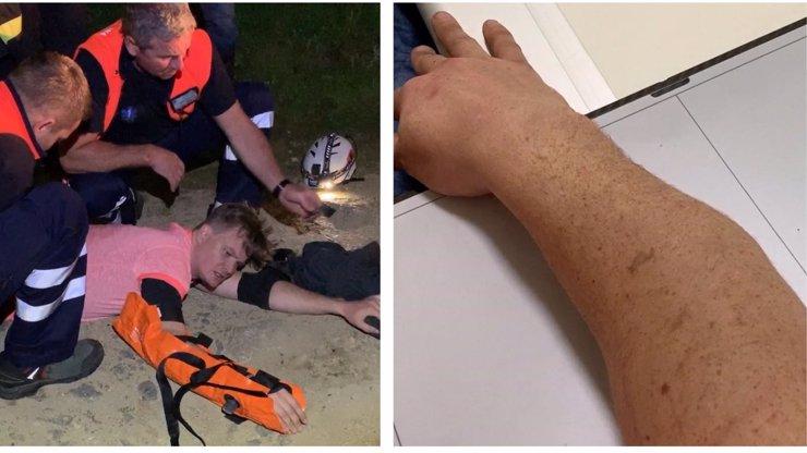 Vážná NEHODA Kazmy: Půl hodiny trpěl na zemi s OTOČENOU rukou, zasahovat museli hasiči