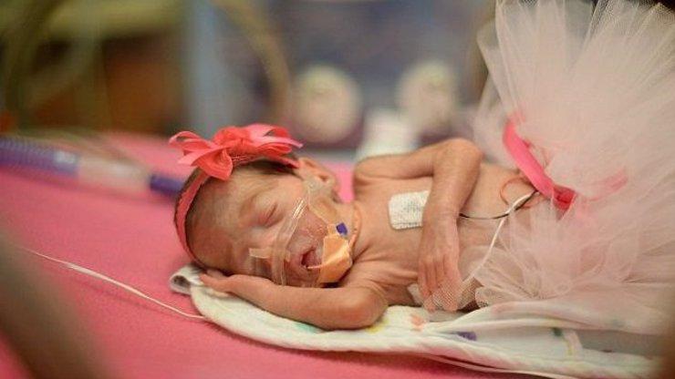 Zemřela jí šestiměsíční dcera, tak pomáhá druhým: 11 překrásných snímků předčasně narozených dětí