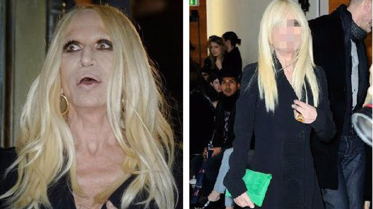 Ještě se nerozpadla! Donatella von Botox Versace se smála a nám se chce plakat!