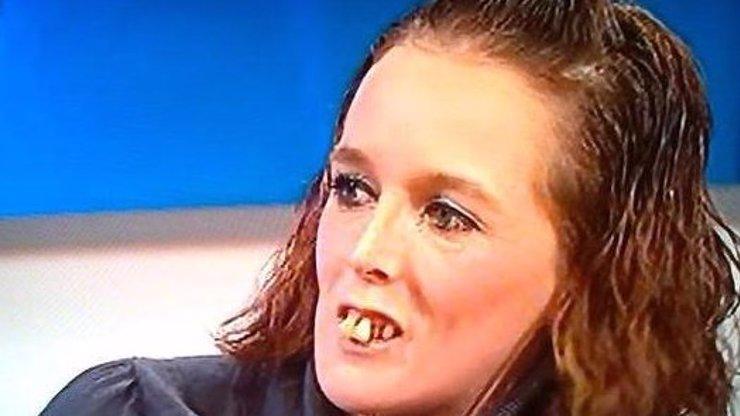 Jedna z nejošklivějších žen světa má konečně nové zuby! Podívejte se na VIDEO