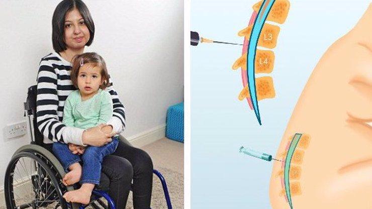 Děsivé následky porodu: Píchli jí epidurál, ona ochrnula!