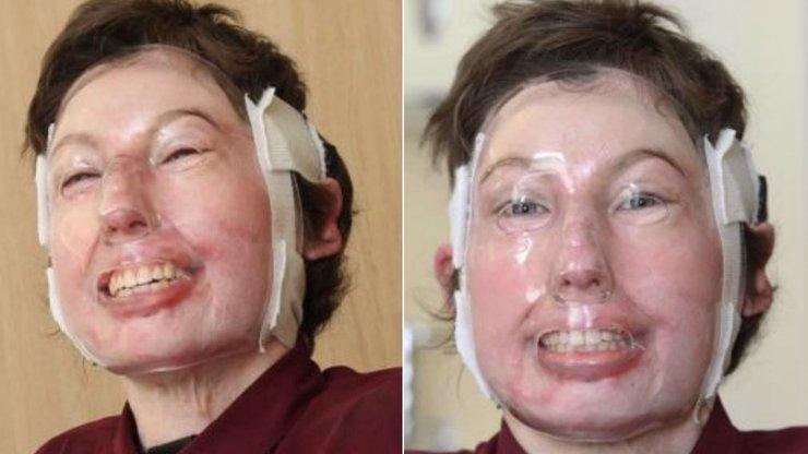 Mladá dívka jako první člověk na světě přežila těžké popáleniny na 96 procentech těla! Co se jí stalo?