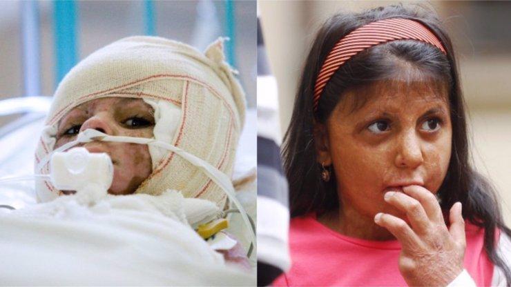 Zápalné láhve a noc plná hrůzy: Natálka (11) i deset let po útoku trpí jako zvíře