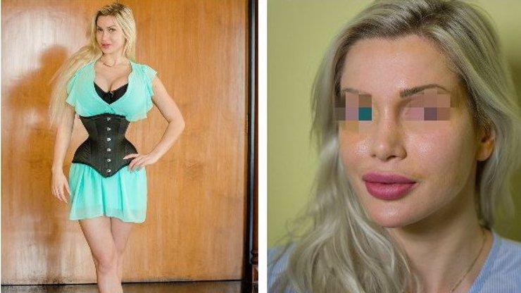 PLASTIKA JAKO KONÍČEK: Jedinečná barva očí není problém, stačí si jen objednat termín!