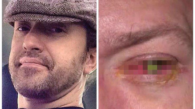 Američan spal s kontaktními čočkami. Na levé oko oslepl a má z něho teď tohle!