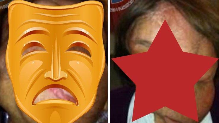 Žena, které obří nádor děsivě znetvořil obličej, dostala druhou tvář. Varování! Foto v galerii jen pro otrlé!