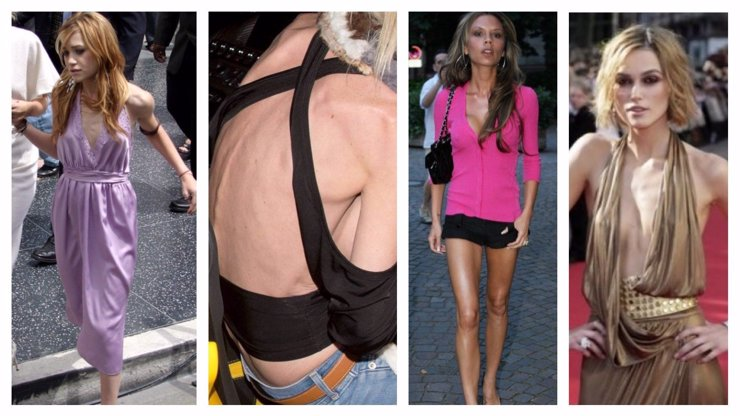 4 nejslavnější anorektičky Hollywoodu: Chodící smrtka, silikonový kostitřas i alkoholová násoska