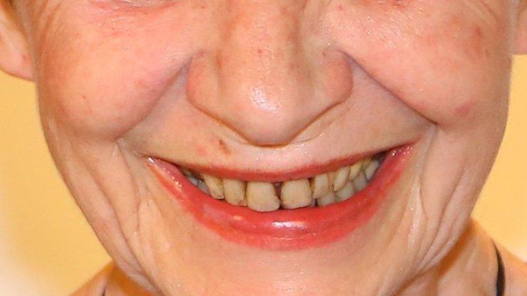 Hvězda filmu Na samotě u lesa potřebuje zubaře. Proč slavná česká herečka na svůj úsměv nedbá?