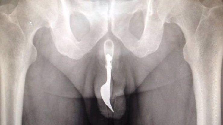 Neuvěřitelné: Tomuhle muži museli z penisu vytáhnout deseticentimetrovou vidličku