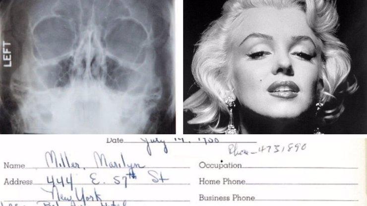 Ani božská Marilyn nebyla dokonalá: Lékařské zprávy odhalily, že měla plastiku!