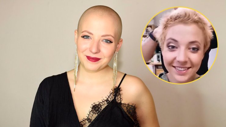 Dojemná chvíle v Ordinaci: Anna Slováčková po boji s rakovinou poprvé ukázala háro