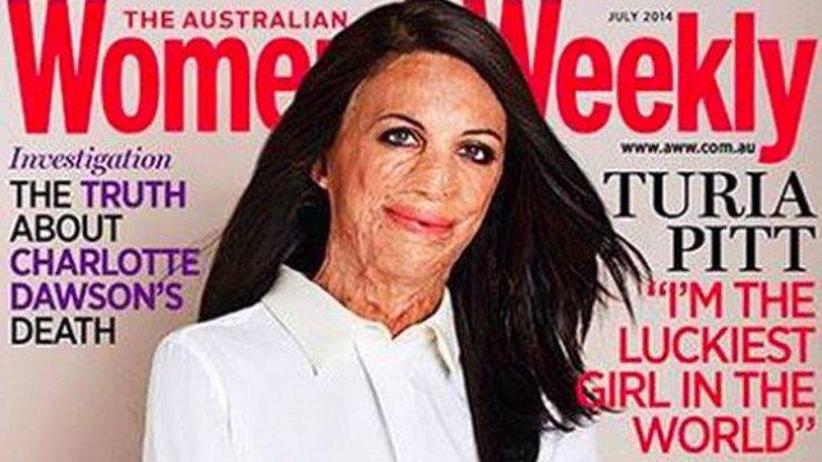 Australský magazín zveřejnil na titulce fotku vážně popálené ženy a sklidil obrovský úspěch