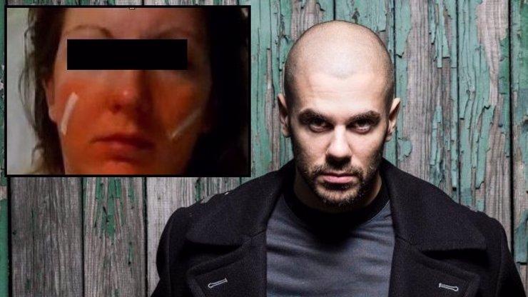 Krutopřísňáček Ektor odsouzen za zmlácení mladé ženy! Kolik rapper s výrazem inteligenta vyfasoval?