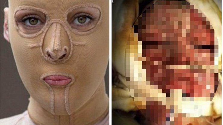 Žena, které žárlivá sokyně popálila obličej, se chystá sundat masku! Jak vypadala před znetvořením?