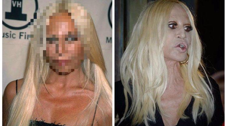 Pamatuje si někdo, jak vypadala Donatella bez plastik? My ano, a je to neuvěřitelné