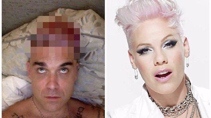 Robbie se probudil a vypadá stejně jako Pink! Tak to musel být ale krutopřísný večírek...