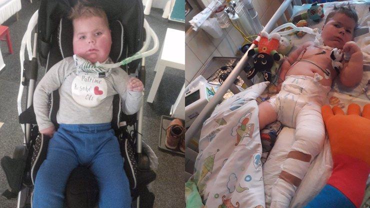 Bojovník se SMA Oliverek musel na operaci: Zlomil si jednu z nejtvrdších kostí v těle