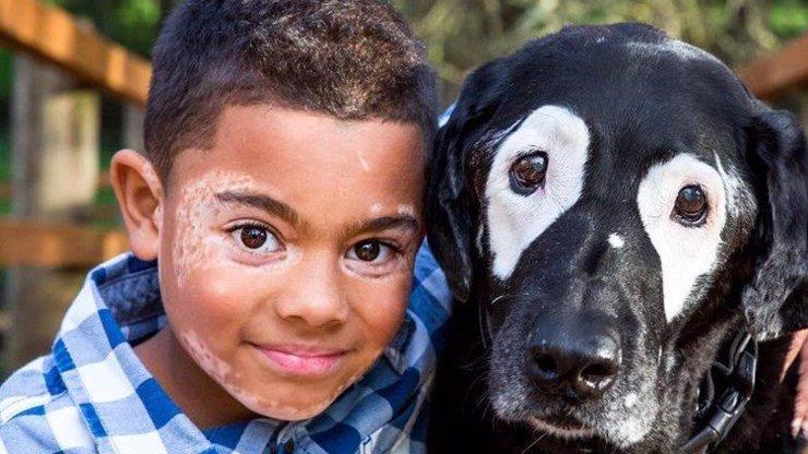 Doják dne: Netradiční pejsek pomáhá chlapci s kožní nemocí!