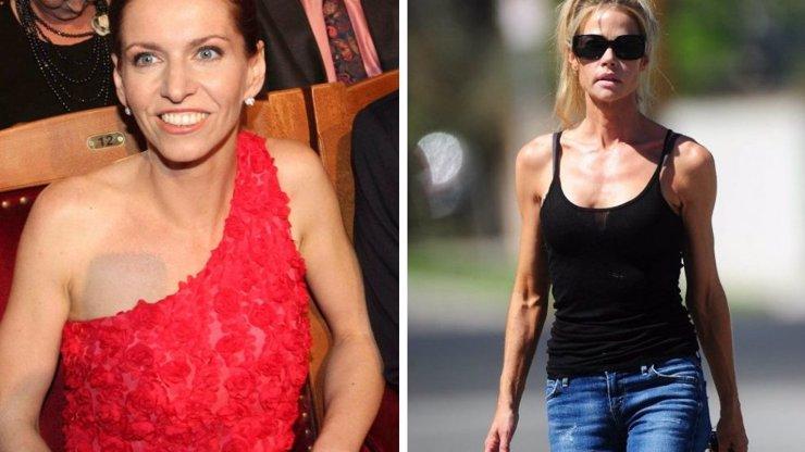 Moderátorka Fridrichová děsila na TýTý vyhublými pažemi, kostřička Denise Richards by mohla vyprávět...