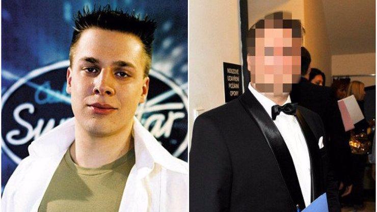 Pamatujete si na finalistu první řady SuperStar Tomáše Savku? Stal se z něj pořádný otesánek se znetvořenou tváří!