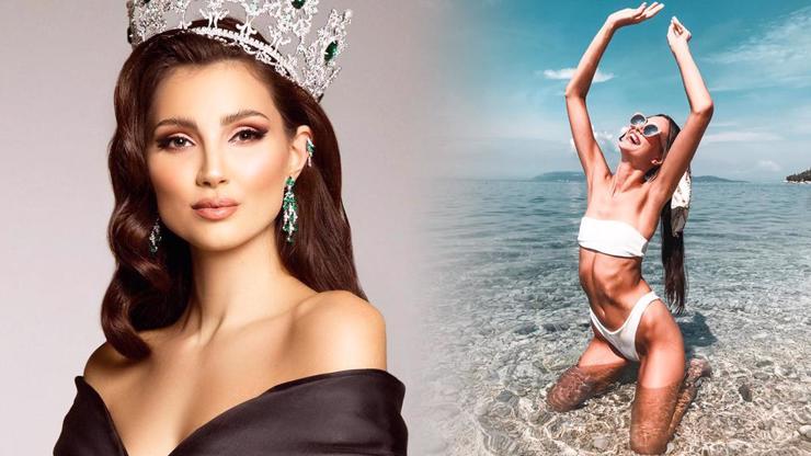 Miss Karolína Kopíncová jde pod kudlu: Chce nafouknout své jedničky