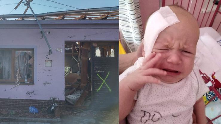 Další oběť tornáda: Dvouměsíční Alex měl v hlavě obrovský střep, rodina prosí o pomoc
