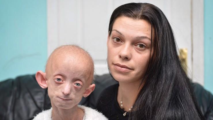 Strašlivá nemoc: Dívka zemřela krátce po 18. narozeninách, její tělo mělo 144 let