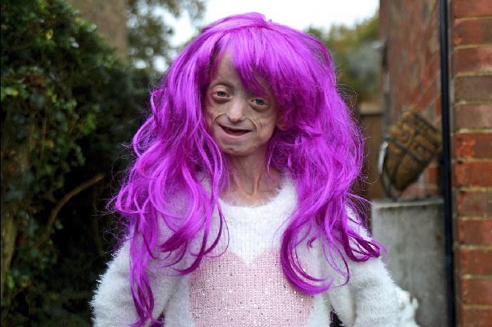 Dívka se syndromem Benjamina Buttona zemřela krátce po svých 18. narozeninách