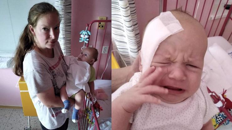 Děsivé následky tornáda: Malý Alex (2 měs.) měl v hlavě zaseknutý veliký střep!