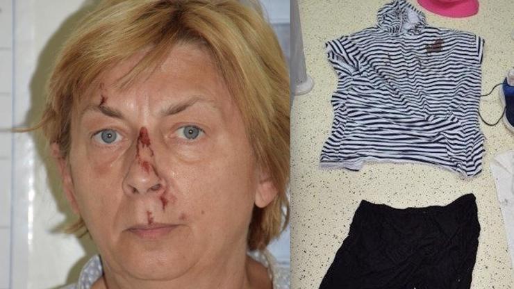 Záhada v Chorvatsku: Našli zakrvácenou ženu, která si nic nepamatuje. Policie chce použít umělou inteligenci