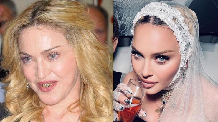 Zastavte ji někdo: Madonna na Instagramu retušuje ostošest